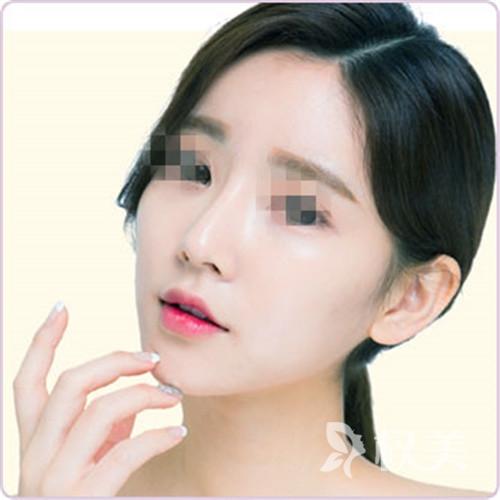 保定华美整形美容医院鼻畸形矫正 收获美丽鼻梁