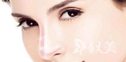 厦门新开元整形美容医院耳软骨垫鼻尖的作用 手术价格