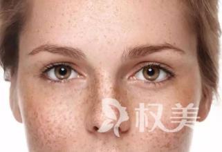 无锡武警医院康颜激光美容科祛眼睛黄褐斑安全吗